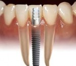 Implantation of teeth