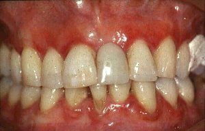 Simple Treatment Of Gum Disease!