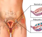 Understanding Polycystic Ovary Syndrome and What Can Be Done To Help It