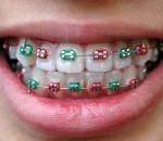 Contemporary Dental Braces