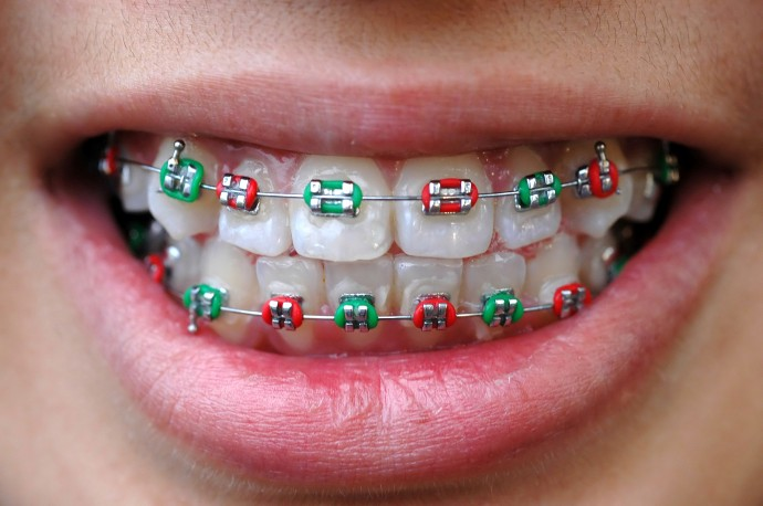 4 Types Of Contemporary Dental Braces