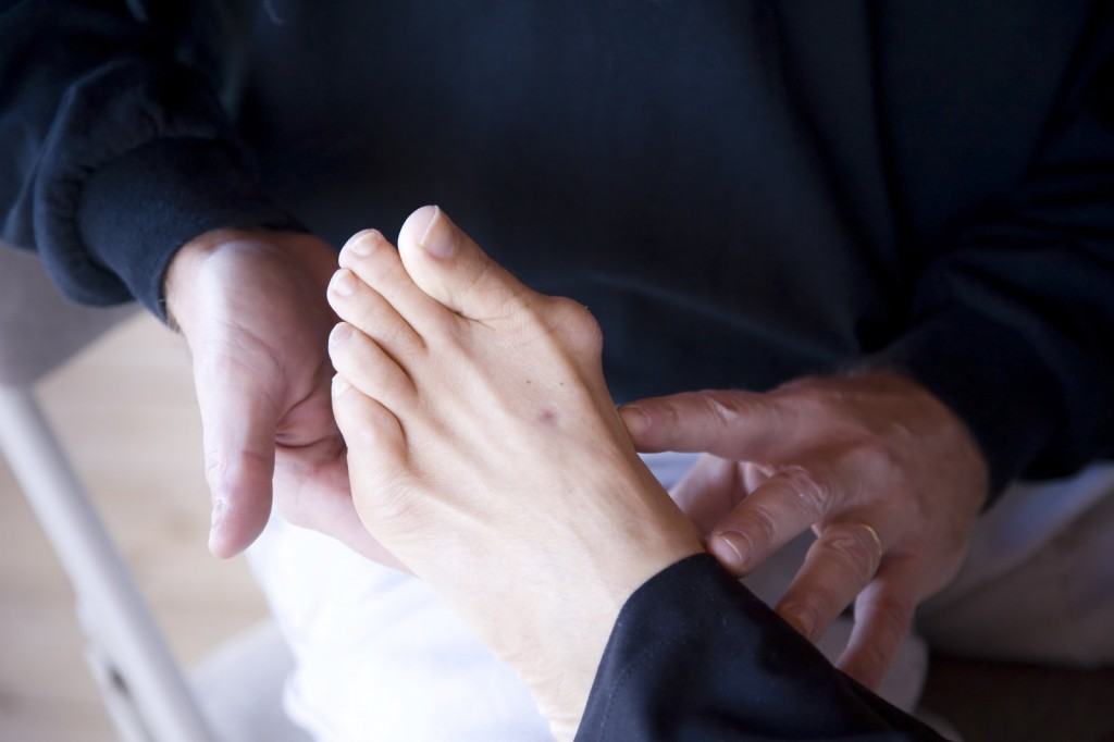 Various Treatment Options For Tailor's Bunion