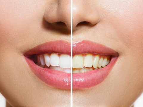What You Should Know Before Scheduling A Professional Teeth Whitening Appointment
